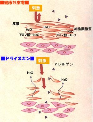健康な皮膚とドライスキンの肌構造
