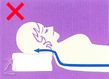 蘇生の森 枕:一般的な枕