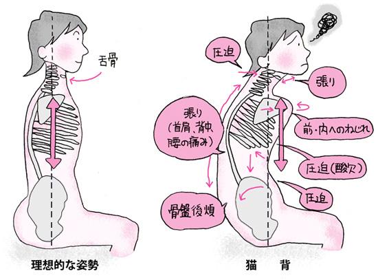 腰椎・背骨・骨盤を補正するとどうなる?