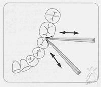 説明図10